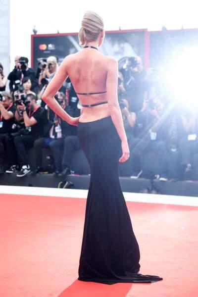 Un dos nu ultra sexy signé Elsa Hosk en robe Etro