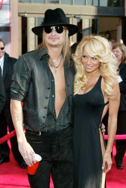 4 mois pour Pamela Anderson et Kid Rock
