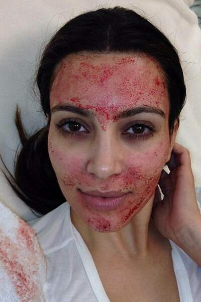 Kim Kardashian et le vampire facial