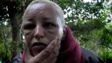 PHOTO – Lââm défigurée par les moustiques, la chanteuse est méconnaissable