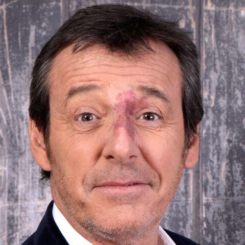 PHOTO – Jean-Luc Reichmann: ses retrouvailles avec Gabin, l'enfant moqué à l'école à cause de sa tâche sur le visage