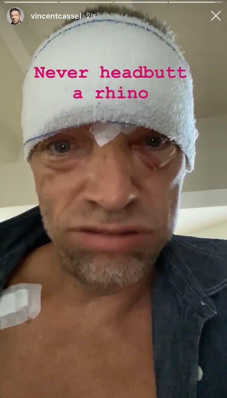 Vincent Cassel a plaisanté à propos de sa blessure après un accident de scooter à Arbonne