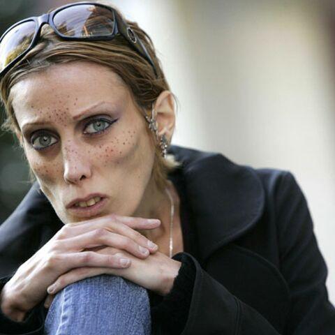 Le mannequin Isabelle Caro décède à 28 ans
