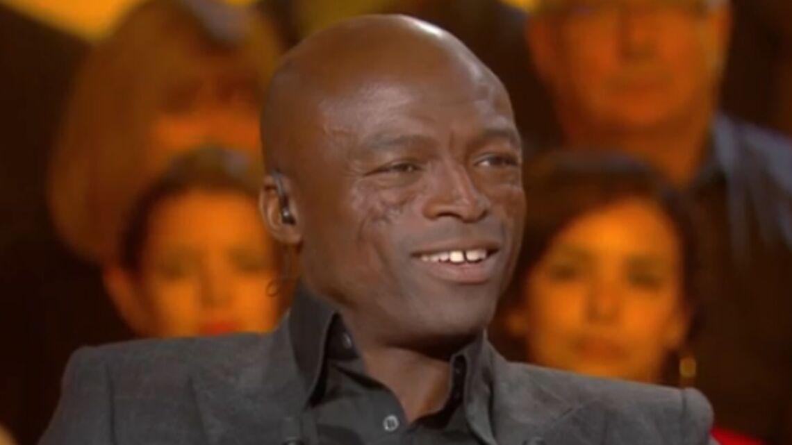 VIDÉO – Seal explique d'où viennent ses cicatrices au visage