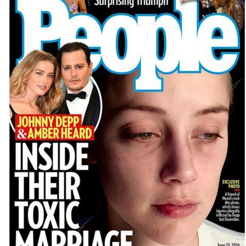 Amber Heard dévoile de nouvelles photos chocs de son visage