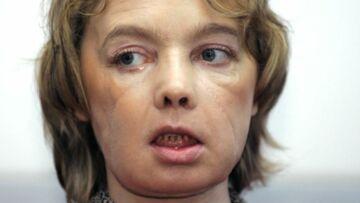 Isabelle Dinoire, la première greffée du visage est morte