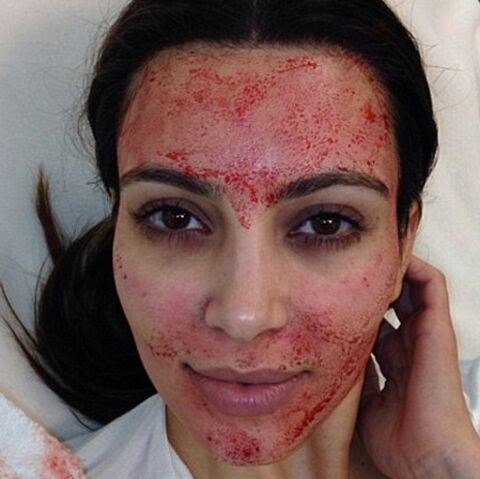 Kim Kardashian: l'astuce beauté du vampire