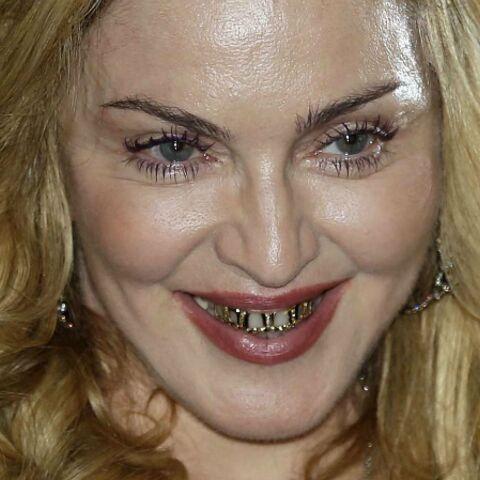 Photos- Le nouveau sourire en or de Madonna