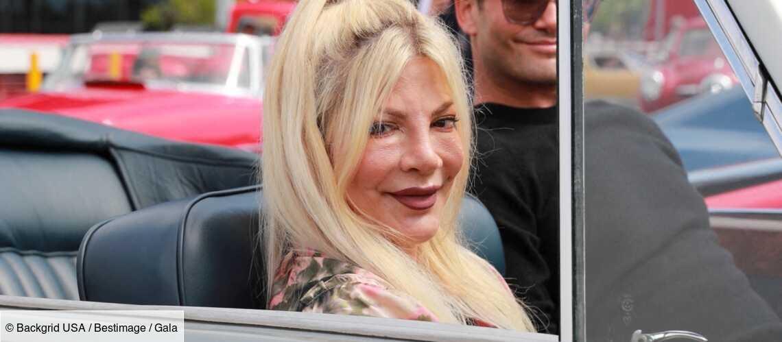 PHOTOS – Tori Spelling méconnaissable : l'actrice de « Beverly Hills » victime des ravages de la chirurgie esthétique - Gala